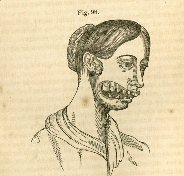 Archival drawing from the 19th century of phossy jaw by Mutter, via Gizmodo, licensed under CC BY-SA 4.0.